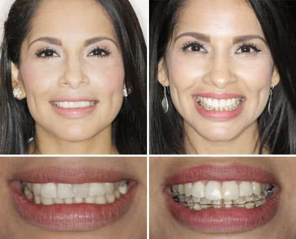 margarita-a-6-month-smiles2