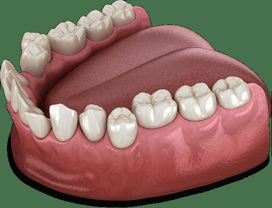 croocked teeth model