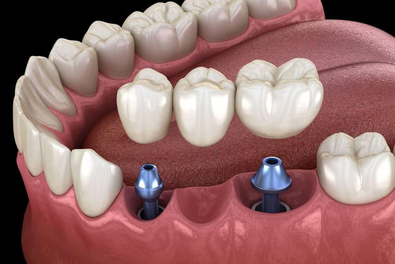 dental implant crown model