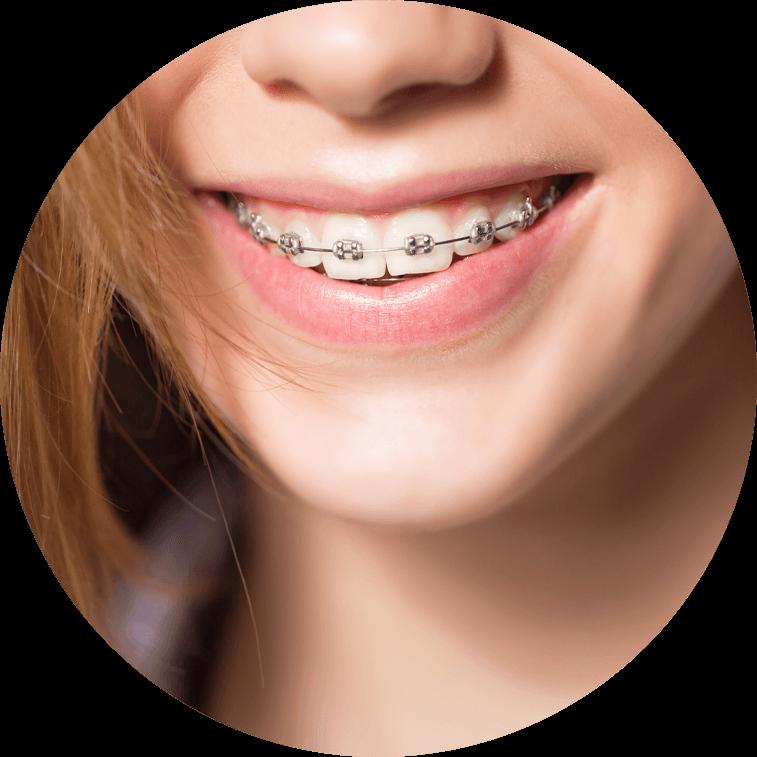 dental patient wearing braces