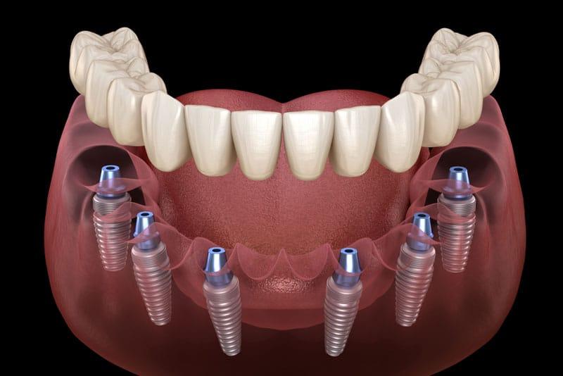 full mouth dental implants model