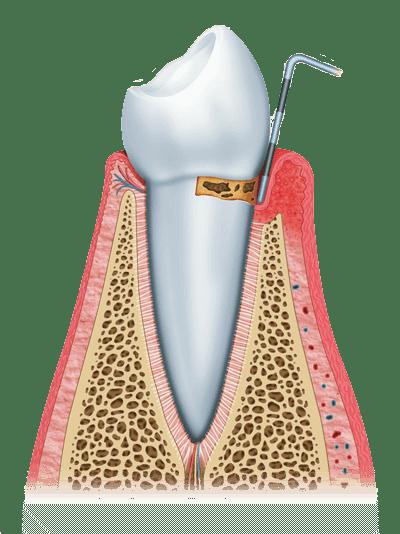 gum disease graphic stage 1