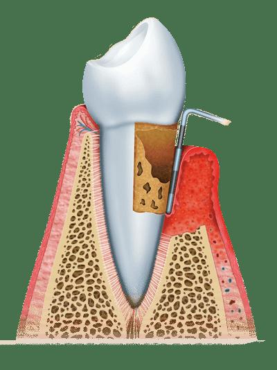 gum disease graphic stage 3