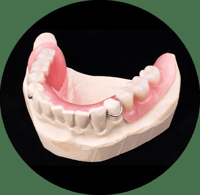 partial denture model